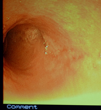 Gastrointestinal endoscopy and colonoscopy at Cat Specialist Services