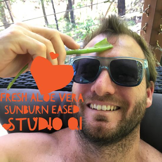 Aloe Vera for Sunburn