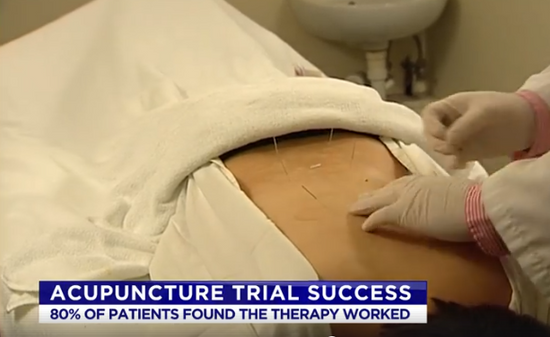 Australian Trial of Acupuncture