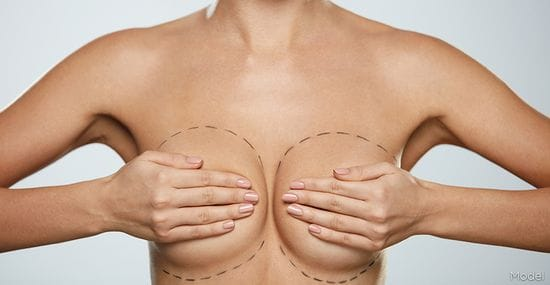 Recent Changes in Medicare on Breast Implant Replacement