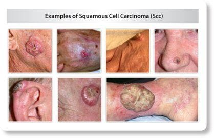 What is an SCC (Squamous Cell Carcinoma)?
