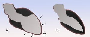 Dilated cardiomyopathy (DCM)