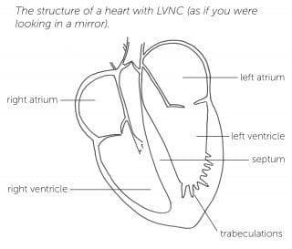 Left ventricular noncompaction cardiomyopathy