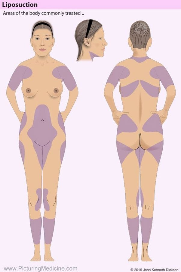 Liposuction Common Areas
