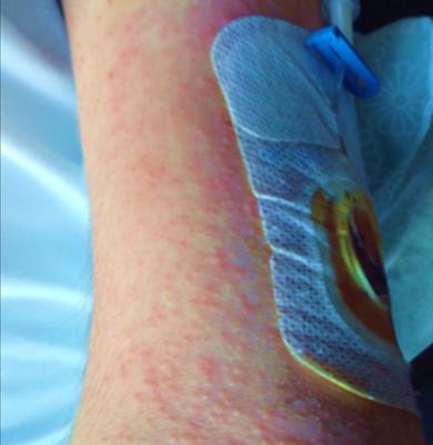 Fig 2. Contact dermatitis
