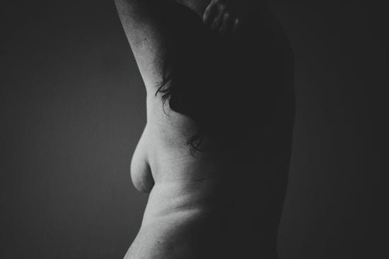 What Will My Scars Look Like After A Breast Reduction?
