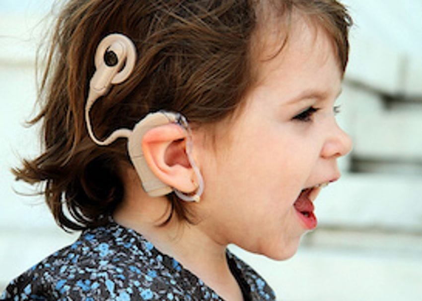 Cochlear's profit dented by US tax charges but Apple's implant project is steaming ahead