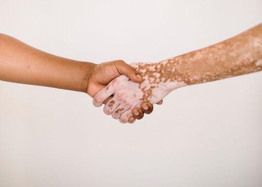 Avita Medical receives FDA green light for US trial of potential vitiligo treatment