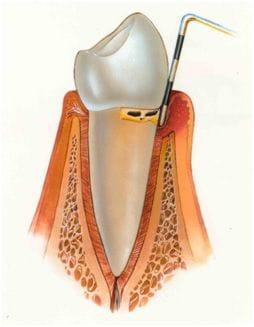 Periodontics & Dental Implant Centre | Periodontics | Indoor