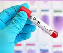 Hygeia Clinic Allergy testing