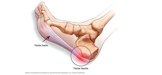 Plantar Fasciitis - Physiotherapy Can Help