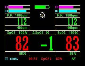 Pulse Oximetry screenshot with dual inputs