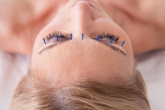 Acupuncture for people undergoing cancer treatment