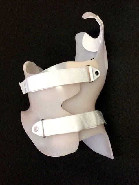 Gensingen Cheneau Scoliosis Brace | Orthobility Bracing