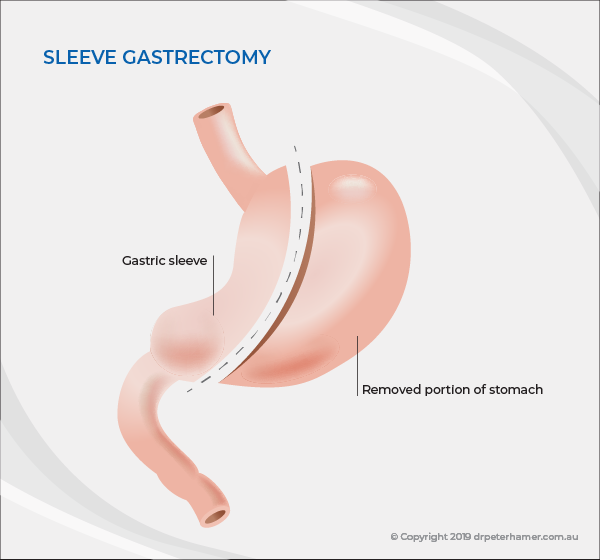 Sleeve gastrectomy | Dr Peter Hamer
