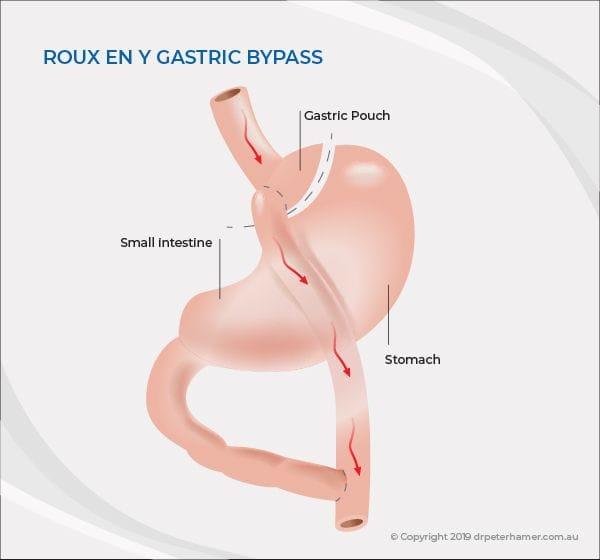 Gastric bypass | Dr Peter Hamer