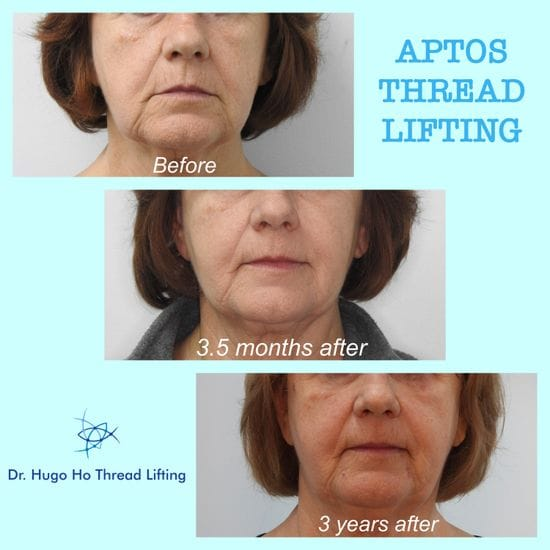 Anti-Aging with a Facial Thread Lift