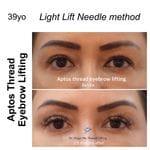 Eyebrows & Forehead