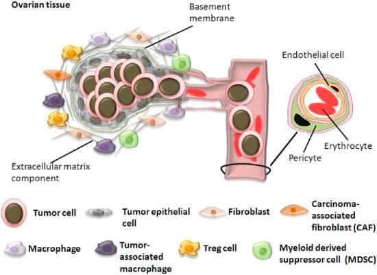 Tumor Microenvironment in Ovarian Cancer