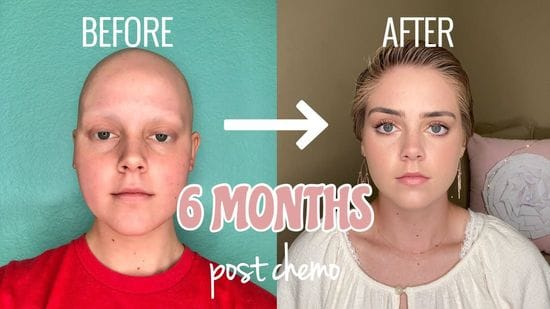 Tips for Post-Chemo Hair Growth