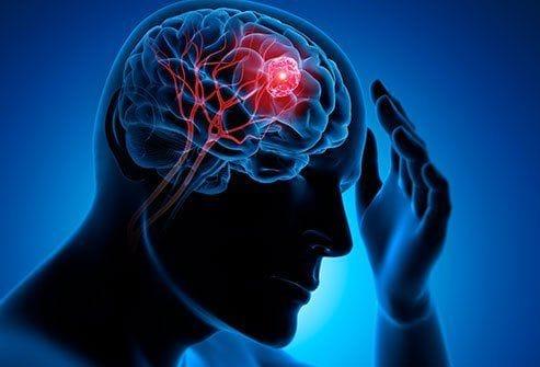 The Common Symptoms of Brain Tumor