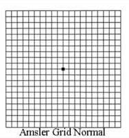 Amsler Grid Normal