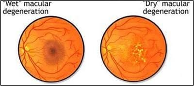Macular Degeneration Wet and Dry