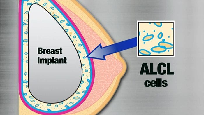 Breast Implant Related Anaplastic Large Cell Lymphoma