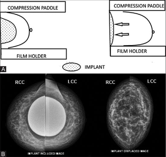 Breast Implants, Breast Cancer and Screening