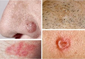 What is a BCC (Basal Cell Carcinoma)?