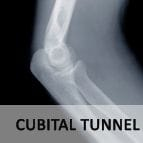 Cubital Tunnel