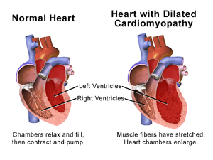 Dilated cardiomyopathy (DCM)