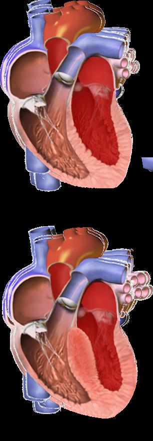 Hypertrophic cardiomyopathy (HCM)