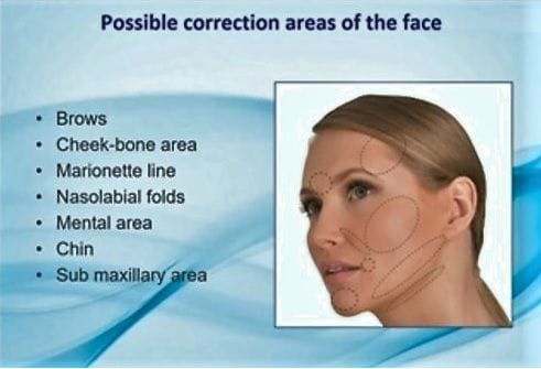 Aptos | Thread Lifting | Face & Neck lift | Facelift | neck lift