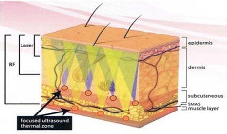 HIFU | Focused ultrasound | Facelift | skin tightening