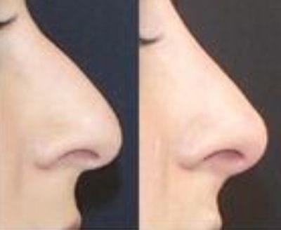 Dermal Fillers | Volumisers | Non surgical | Anti Wrinkle | Sydney