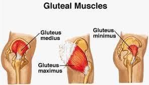 gluteal tendinopathy