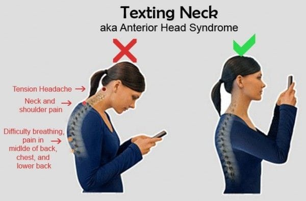 Texting Neck: Is texting causing your neck pain?