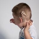 Hear hear! Implant milestone for Cochlear with solid results