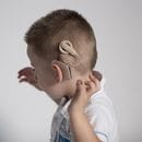 Patent litigation, COVID-19 send Cochlear into the red with $238m loss