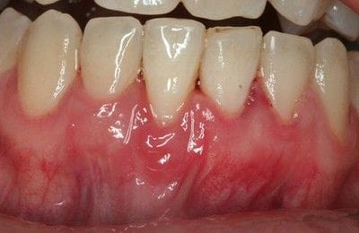 Gingival Grafting Post-Operation | Periodontics & Dental Implants Centre | Indooroopilly & Toowoomba