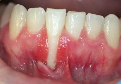 Gingival Grafting Pre-Operation | Periodontics & Dental Implants Centre | Indooroopilly & Toowoomba