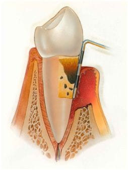 Periodontics & Dental Implant Centre | Periodontics | Indoor