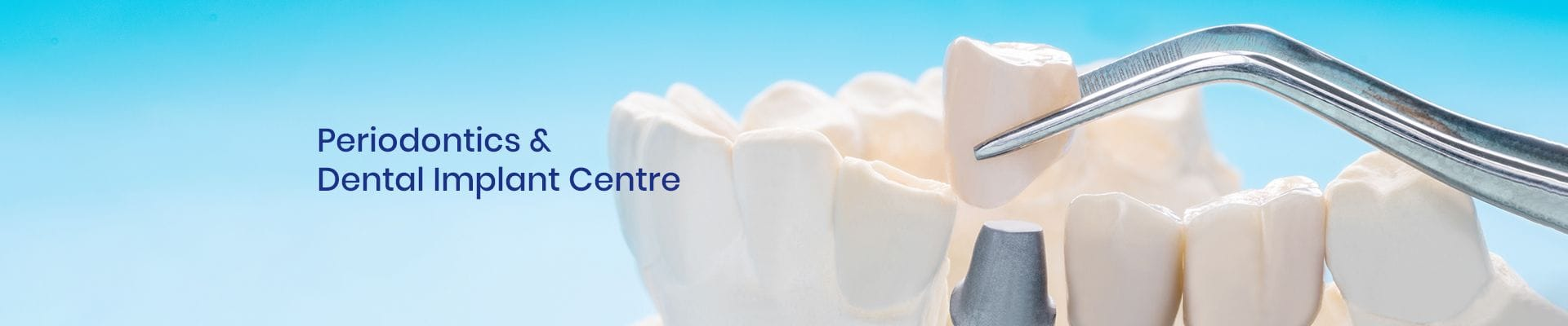 Dental Specialists | Periodontics & Dental Implant Centre
