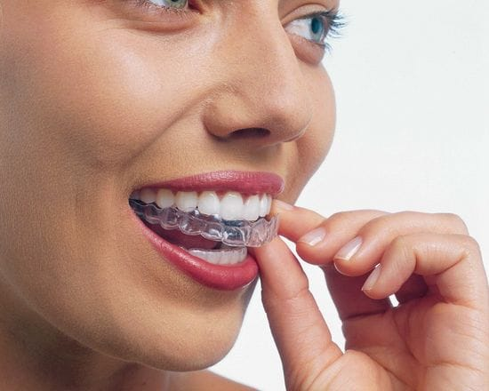 Invisalign: Your new smile design