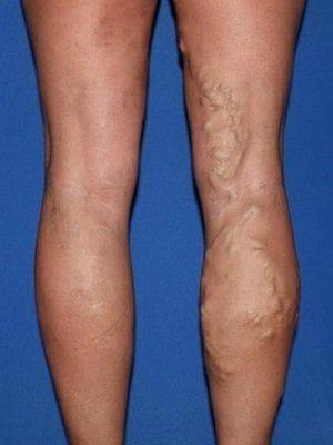 Enlarged veins in legs