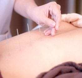 Mississauga Chiropractic Clinic Treats Acupuncture