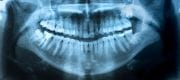 A revolution in dental implants