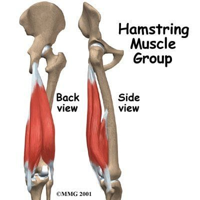 Chronic Proximal Hamstring Pain in a Runner