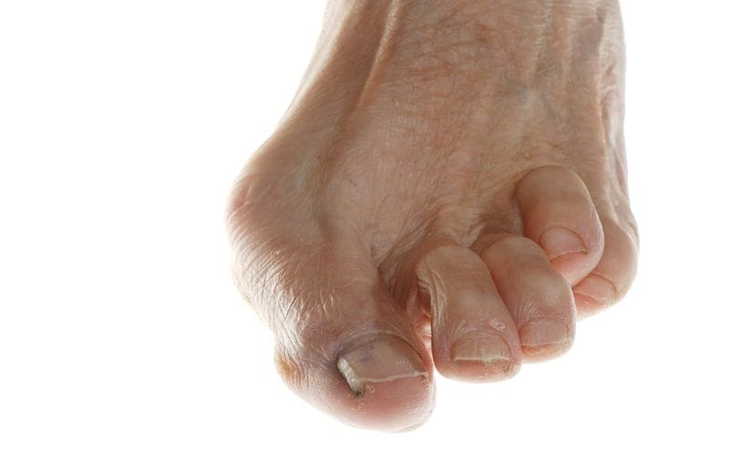 What Is a Hammertoe, and How Can It Be Treated?